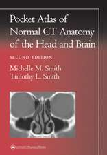 Pocket Atlas of Normal CT Anatomy of the Head and Brain