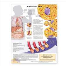 High Cholesterol Anatomical Chart in Spanish (Colesterol alto)