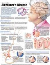 Understanding Alzheimer's Disease Anatomical Chart