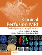Clinical Perfusion MRI: Techniques and Applications