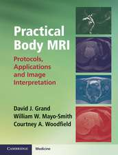 Practical Body MRI: Protocols, Applications and Image Interpretation