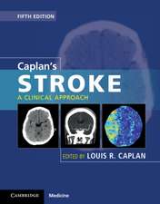 Caplan's Stroke: A Clinical Approach