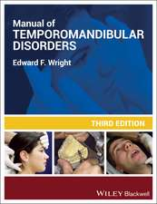 Manual of Temporomandibular Disorders [With CDROM]:  How to Leverage Your Resources and Make Team Selling Work