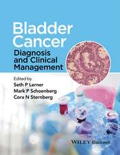 Bladder Cancer: Diagnosis and Clinical Management