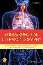 Endobronchial Ultrasonography