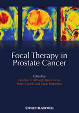 Focal Therapy in Prostate Cancer