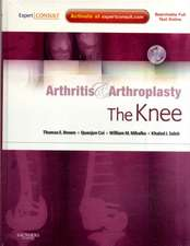 Arthritis and Arthroplasty: The Knee: Expert Consult - Online, Print and DVD