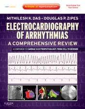 Electrocardiography of Arrhythmias: A Comprehensive Review: A Companion to Cardiac Electrophysiology