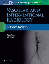 Vascular and Interventional Radiology: A Core Review