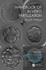 Handbook of in Vitro Fertilization, Fourth Edition