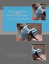 The Essential Ctbna Bronchoscopist