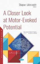A Closer Look at Motor-Evoked Potential