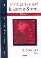 State-of-the-Art Imaging in Stroke