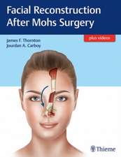 Facial Reconstruction After Mohs Surgery