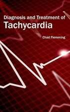 Diagnosis and Treatment of Tachycardia
