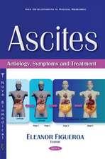 Ascites: Aetiology, Symptoms & Treatment