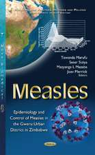 Measles: Epidemiology & Control of Measles in the Gweru Urban District in Zimbabwe