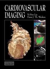Liu, Y: Cardiovascular Imaging