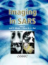 Imaging in SARS