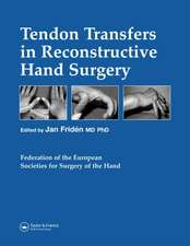 Tendon Transfers in Reconstructive Hand Surgery