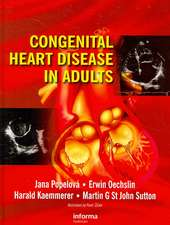 Congential Heart Disease in Adults