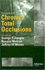 Handbook of Chronic Total Occlusions