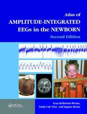 Atlas of Amplitude-Integrated EEGS in the Newborn [With DVD ROM]:  Evaluation and Management