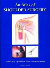 An Atlas of Shoulder Surgery