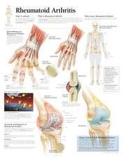 Rheumatoid Arthritis: Laminated Wall Chart
