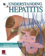 Q&A Understanding Hepatitis:  Wall Chart