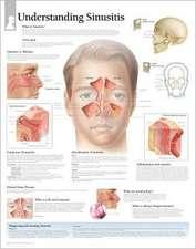 Understanding Sinusitis Chart: Laminated Wall Chart