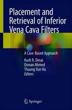 Placement and Retrieval of Inferior Vena Cava Filters