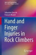 Hand and Finger Injuries in Rock Climbers