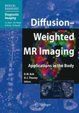Diffusion-Weighted MR Imaging: Applications in the Body