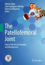 The Patellofemoral Joint: State of the Art in Evaluation and Management
