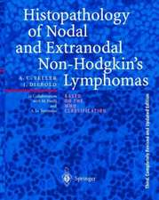 Histopathology of Nodal and Extranodal Non-Hodgkin's Lymphomas