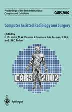 CARS 2002 Computer Assisted Radiology and Surgery: Proceedings of the 16th International Congress and Exhibition Paris, June 26–29,2002