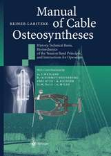 Manual of Cable Osteosyntheses: History, Technical Basis, Biomechanics of the Tension Band Principle, and Instructions for Operation