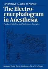 The Electroencephalogram in Anesthesia: Fundamentals, Practical Applications, Examples
