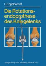 Die Rotationsendoprothese des Kniegelenks