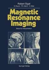 Magnetic Resonance Imaging: Basis for Interpretation