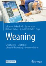 Weaning: Grundlagen - Strategien - klinische Umsetzung - Besonderheiten
