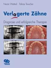 Verlagerte Zähne: Diagnose und erfolgreiche Therapie