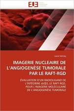 Imagerie Nucleaire de L'Angiogenese Tumorale Par Le Raft-Rgd