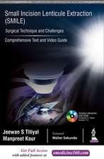 Small Incision Lenticule Extraction (SMILE): Surgical Technique and Challenges: Comprehensive Text and Video Guide