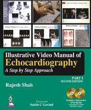 Illustrative Video Manual of Echocardiography Part 1